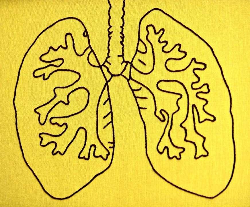 Пацієнту з Covid-19 вперше в історії пересадили легені від живого донора