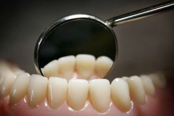 Вчені створили цукерки, які відновлюють зубну емаль