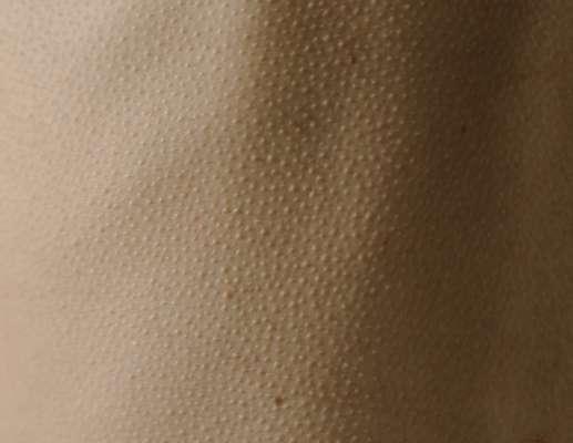 """Ученые объяснили ощущение, когда по коже """"бегут мурашки"""""""