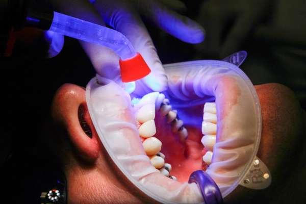 Як зберегти білизну зубів: поради стоматолога