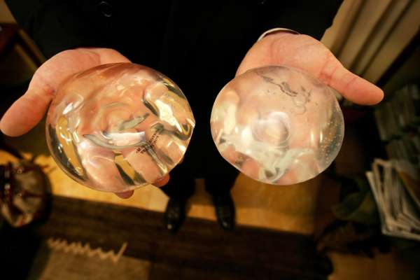 Силиконовые импланты для груди